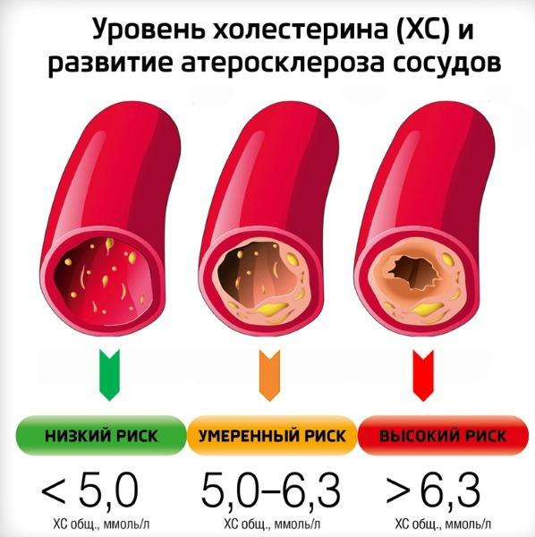 Диета при повышенном холестерине у женщин: для снижения в крови