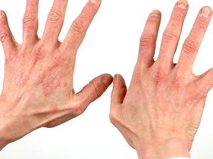 Аллергический дерматит у взрослых: симптомы и лечение