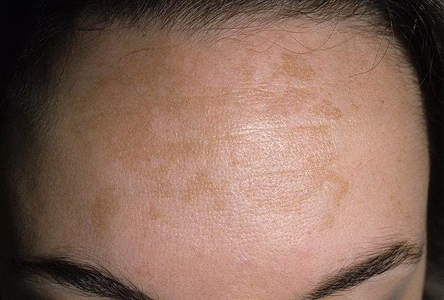 Возрастные проблемы с кожей лица: причины и лечение