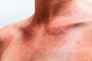Антигистаминные препараты при кожной аллергии: на солнце