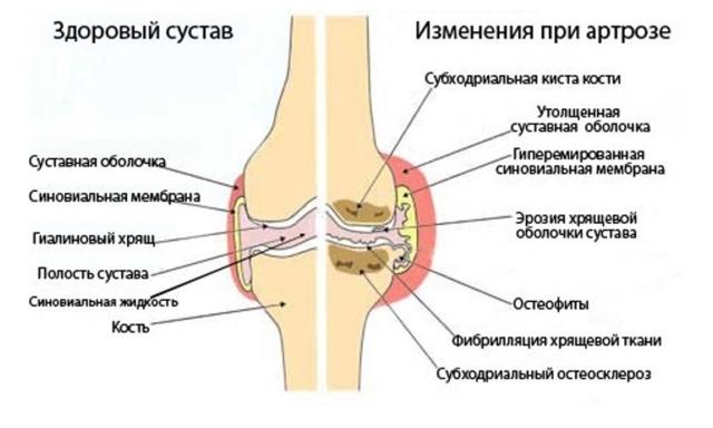 Асептический некроз головки тазобедренного сустава: лечение