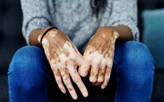 Белые пятна на коже, что это и как лечить
