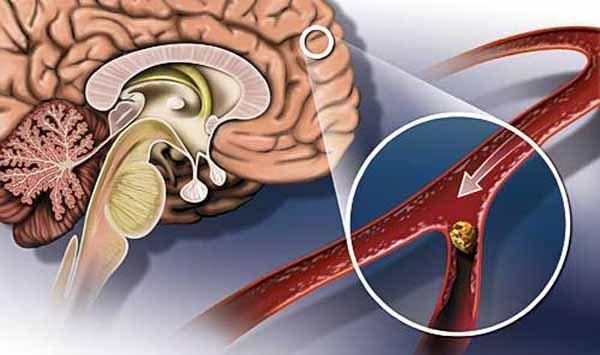 Артериальная гипертензия 2 степени: лечение, стадии