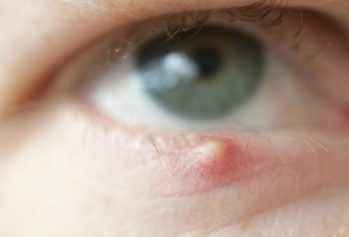 Гидрокортизоновая мазь глазная: инструкция по применению, показания