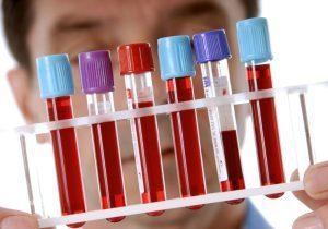 Биохимическое исследование крови: алгоритм забора, взятие, анализ