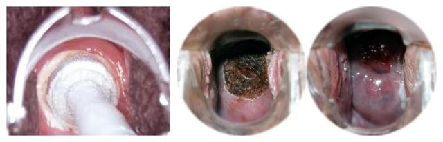 Гиперплазия железистого эпителия шейки матки: что это такое