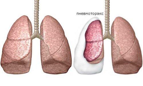 Буллезная болезнь легких: буллы, пузырьки, что это, симптомы