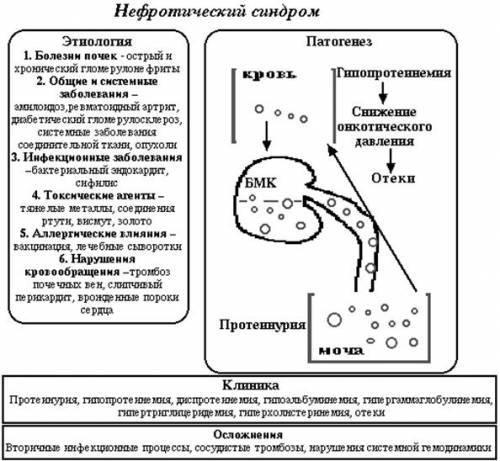 Нефритический и нефротический синдром: разница, отличия