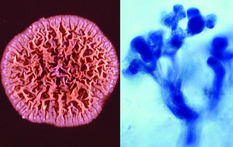 Грибковые заболевания кожи головы: симптомы и лечение