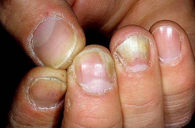 Таблетки от грибка ногтей на ногах: список, лекарства