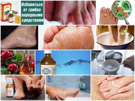 Грибок кожи на ногах: чем лечить, лечение