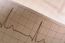 Соматоформная дисфункция вегетативной нервной системы: лечение