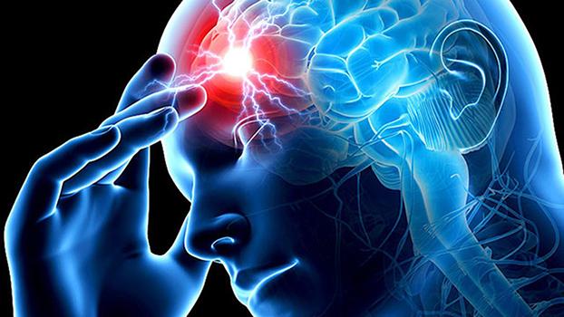 Профилактика инсульта, памятка: головного мозга, у женщин, мужчин