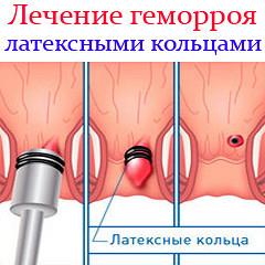 Как выглядит геморрой у женщин: женский, симптомы, лечение