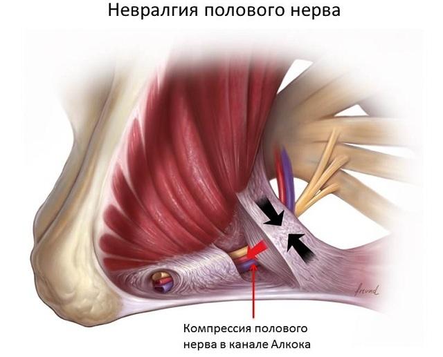 Нейропатия полового нерва: члена, пудендальная, симптомы