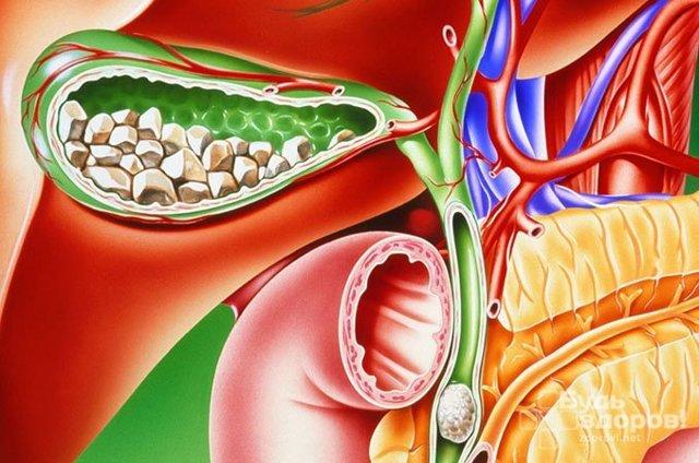 Желчнокаменная болезнь: симптомы и лечение, у женщин, ЖКБ