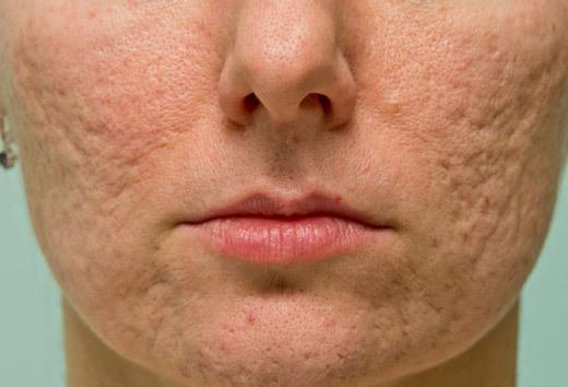 Темные пятна на лице: как избавиться, после прыщей и у пожилых