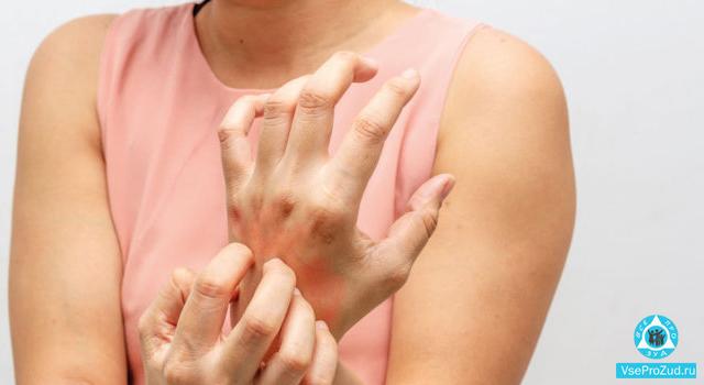 Чесотка на руках: пальцах, запястьях, симптомы и лечение
