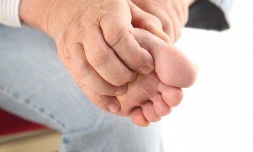Чесотка на ногах: голени, пальцах, симптомы и лечение