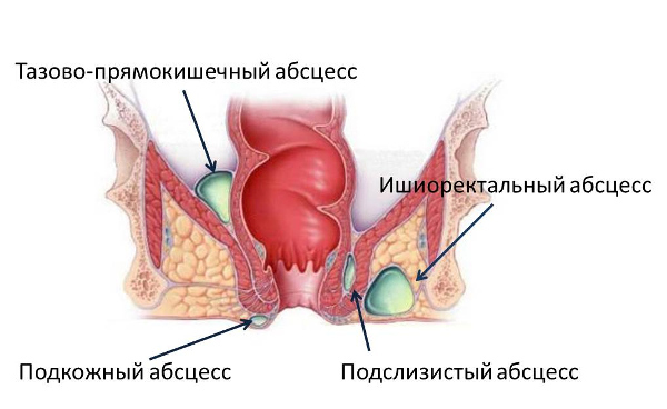 Парапроктит: симптомы и лечение в домашних условиях, признаки
