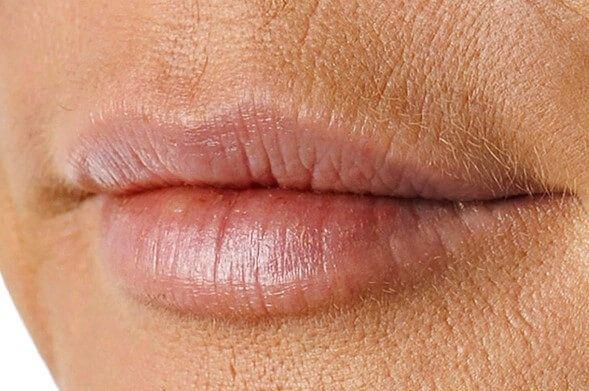 Морщины над верхней губой: как убрать, причины