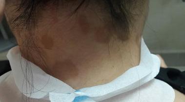 Коричневые пятна на коже: коричневого цвета, появились, что это