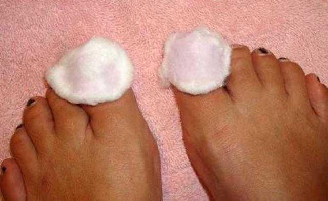 Грибок ногтя на большом пальце ноги: лечение, в домашних условиях