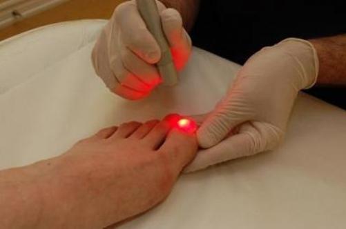 Удаление вросшего ногтя лазером: на ноге, лазерное