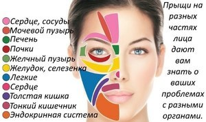 Прыщи на лице: причины, по зонам высыпания, у женщин