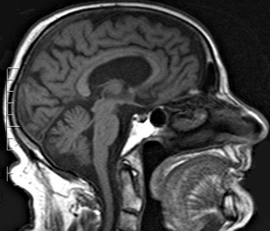 Синдром Капгра: симптомы, сравнение с Фреголи, типы, причины