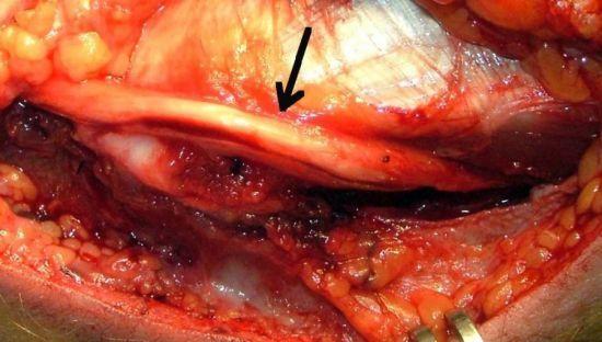 Нейропатия локтевого нерва: симптомы и лечение, сустава