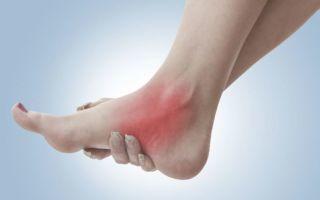 Полинейропатия нижних конечностей лечение и восстановление
