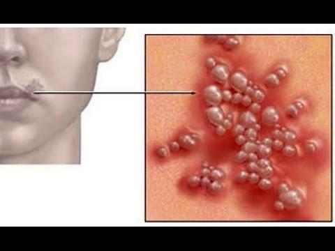 Опоясывающий герпес на теле у взрослых: лечение, чем лечить