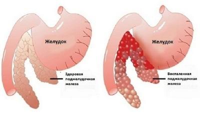 Острый панкреатит: симптомы и лечение в домашних условиях, обострение