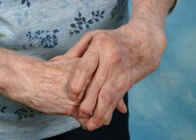 Ревматизм суставов: симптомы и лечение, признаки, лекарство