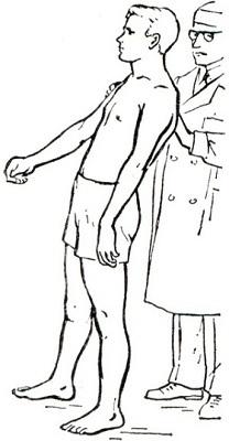 Сенситивная атаксия: симптомы, лечение поражения