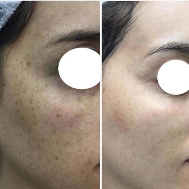 Темные пятна на коже: похожие, синяк, причины