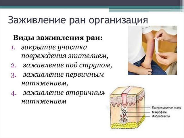 Заживляющая мазь для открытых ран: заживления мокнущих ран