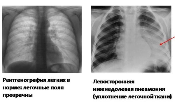Левосторонняя пневмония: нижнедолевая, слева, нижней доли