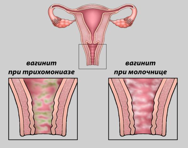 Кандидозный баланит: у мужчин и женщин, причины, симптомы