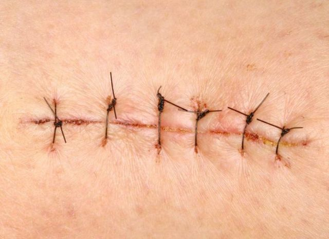Мазь для заживления ран: после операции, гнойные раны