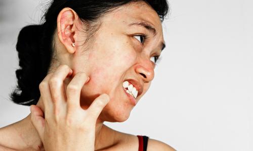 Чесотка на лице: подбородке, у взрослых, что делать