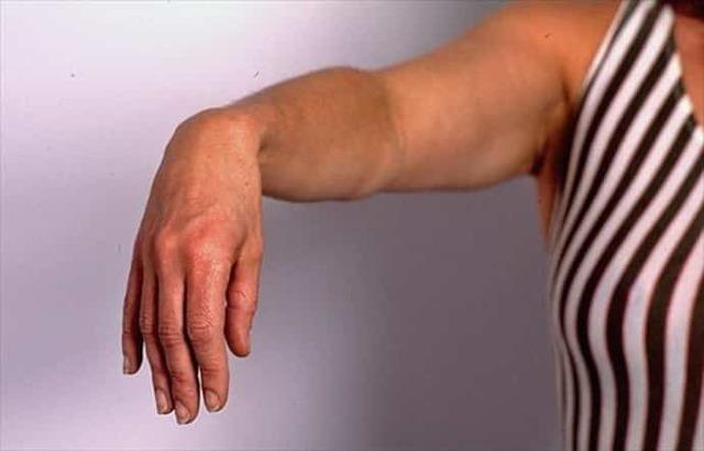 Нейропатия лучевого нерва: травматическая, симптомы и лечение