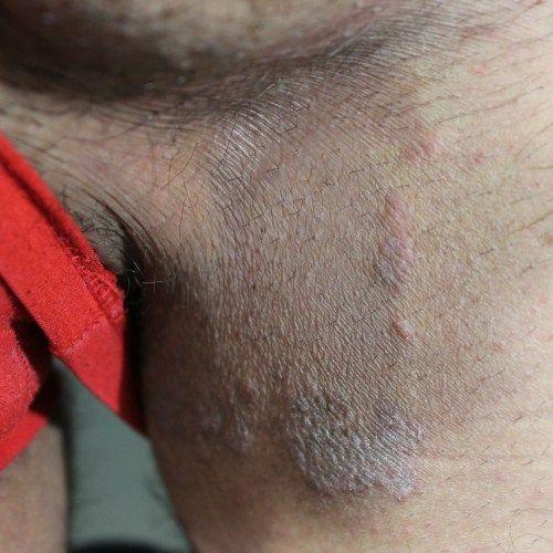 Паховая эпидермофития у мужчин: лечение, в домашних условиях