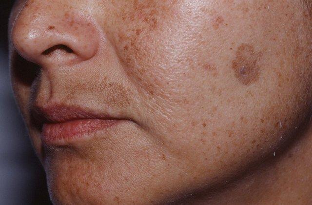 Почему появляются пигментные пятна на лице: у пожилых людей