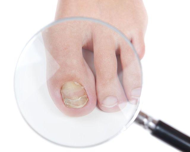 Онихомикоз ногтей: лечение, препараты, недорогие, эффективные