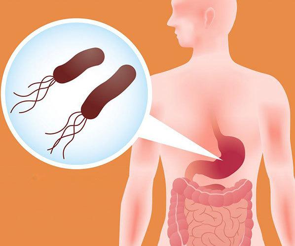 Хронический гастрит: симптомы и лечение у взрослых, формы