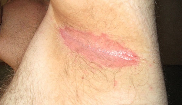 Красные пятна под мышками: в паху, лечение, чешутся, чем лечить