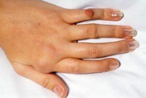 Ревматоидный артрит пальцев рук: первые симптомы, лечение
