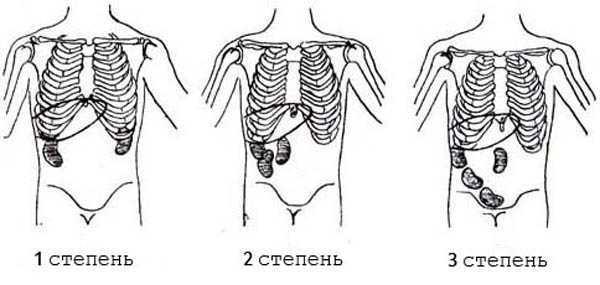 Нефроптоз правой почки: 1 степени, симптомы, лечение
